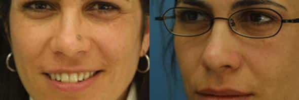 patient-1445-lesion-removal-before-after