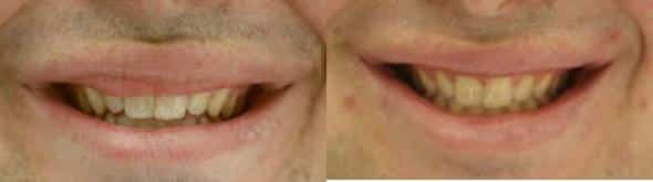 Before and After Skin