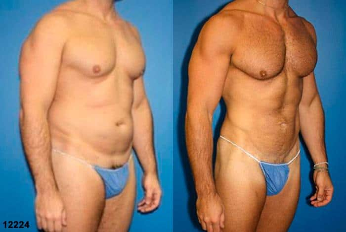patient-1476-liposuction-before-after-1