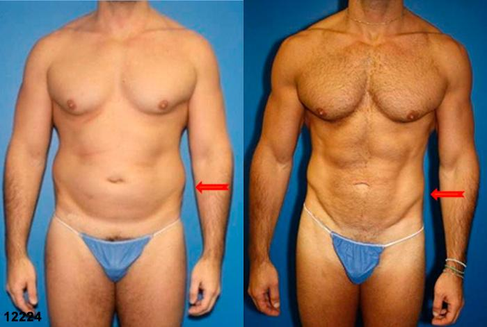 patient-1476-liposuction-before-after