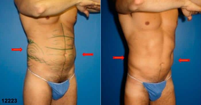 patient-1495-liposuction-before-after-1