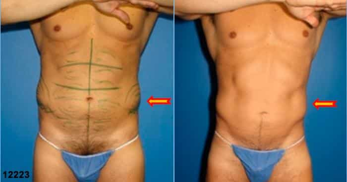 patient-1495-liposuction-before-after