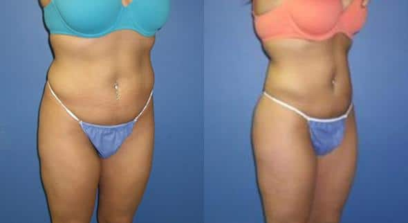 patient-1523-liposuction-before-after-1
