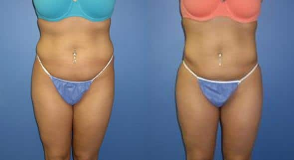 patient-1523-liposuction-before-after