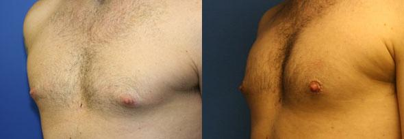 patient-1534-liposuction-before-after-1
