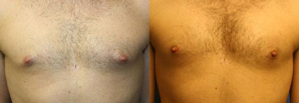patient-1534-liposuction-before-after