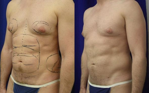 patient-1556-liposuction-before-after-1