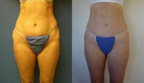 patient-1589-liposuction-before-after
