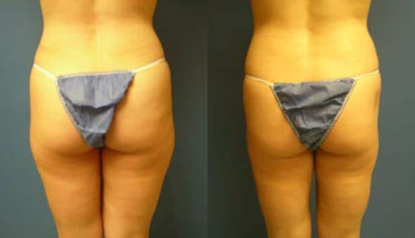 patient-1592-liposuction-before-after-1