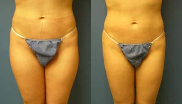 patient-1592-liposuction-before-after