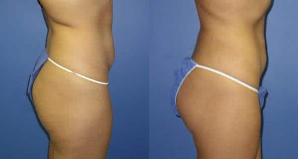 patient-1597-liposuction-before-after-1