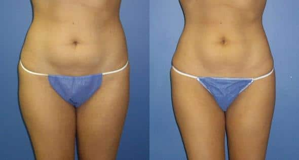 patient-1597-liposuction-before-after