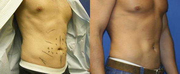 patient-1613-liposuction-before-after-1