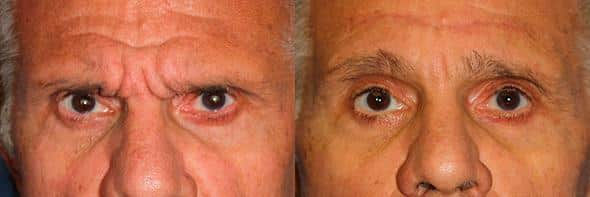 patient-1625-male-blepharoplasty-before-after