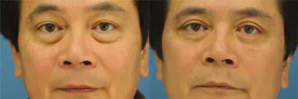 patient-1628-male-blepharoplasty-before-after