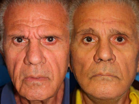 patient-1635-male-browlift-before-after-1