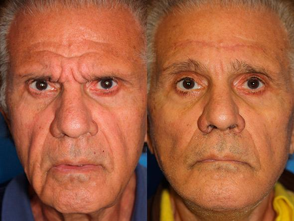 patient-1635-male-browlift-before-after