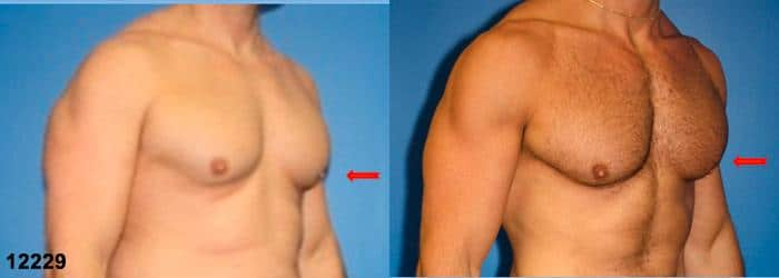 patient-1640-gynecomastia-before-after-1