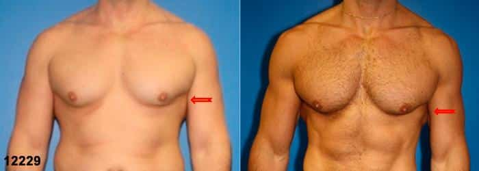 patient-1640-gynecomastia-before-after