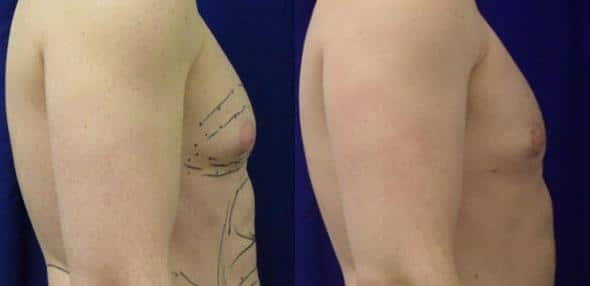 patient-1658-gynecomastia-before-after-1