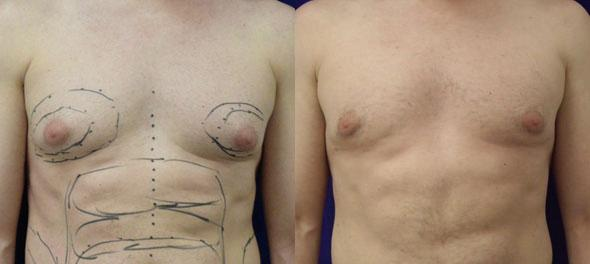 patient-1658-gynecomastia-before-after