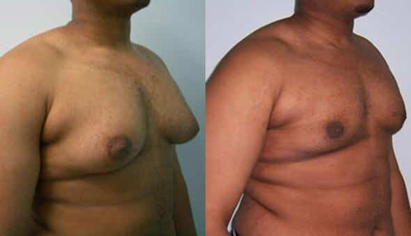 patient-1663-gynecomastia-before-after-1