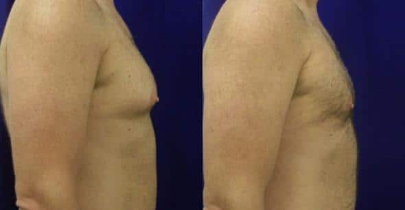 patient-1674-gynecomastia-before-after-1