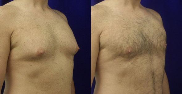 patient-1674-gynecomastia-before-after