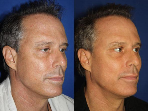 patient-1718-male-fractional-laser-before-after