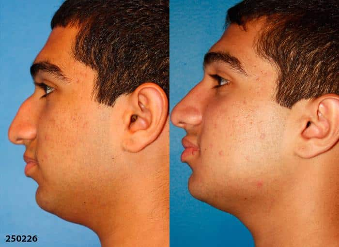 patient-1722-male-ethnic-rhinoplasty-before-after