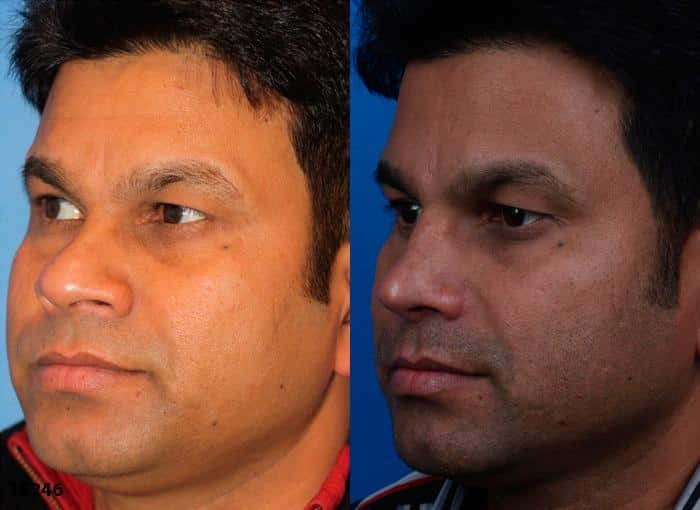 patient-1725-male-ethnic-rhinoplasty-before-after-1