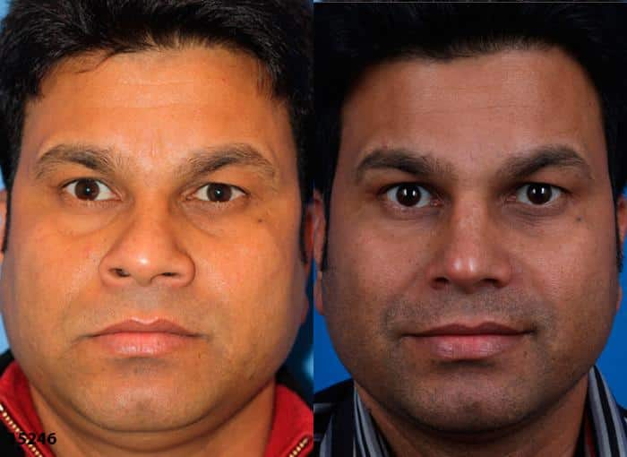 patient-1725-male-ethnic-rhinoplasty-before-after