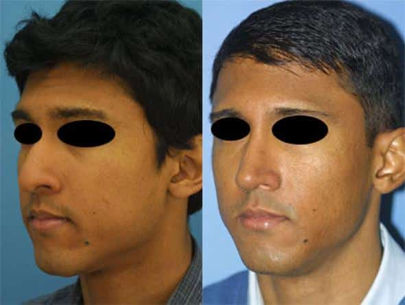 patient-1732-male-ethnic-rhinoplasty-before-after-1