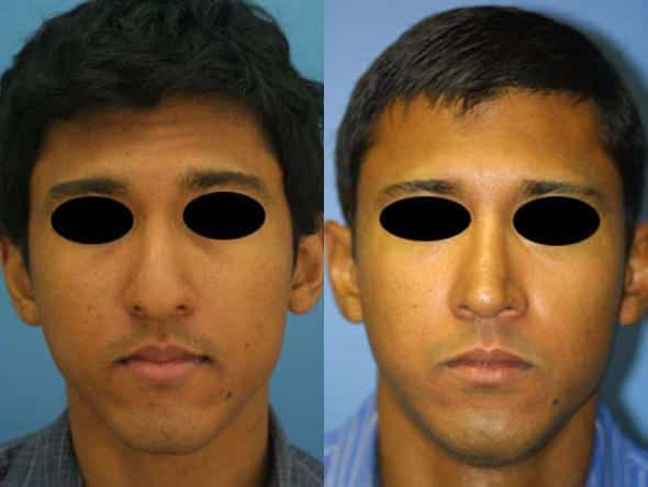 patient-1732-male-ethnic-rhinoplasty-before-after