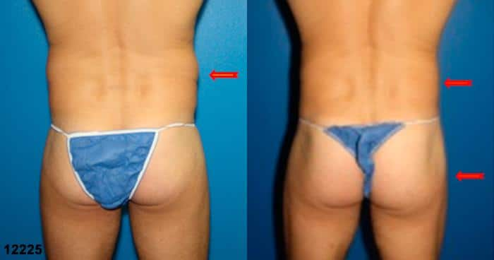 patient-1742-gluteal-augmentation-before-after