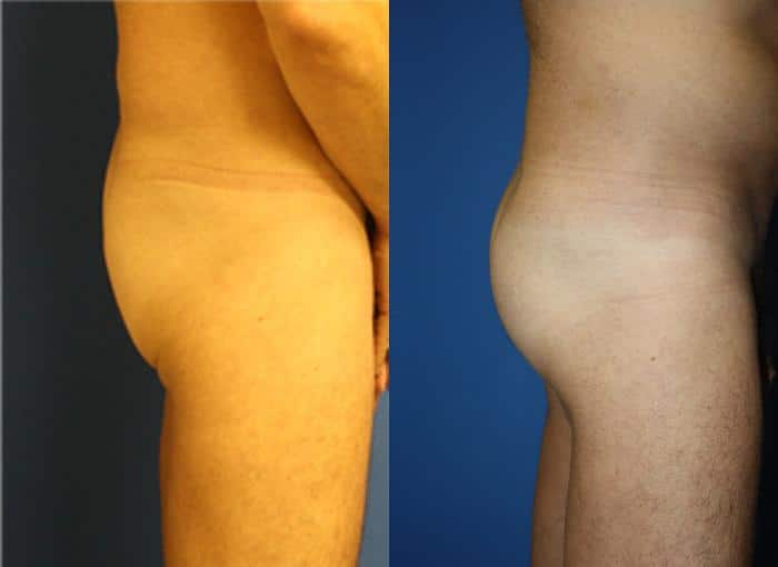 patient-1759-gluteal-augmentation