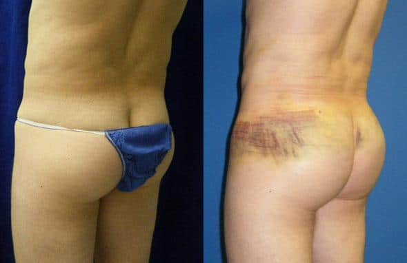 patient-1762-gluteal-augmentation-before-after-1