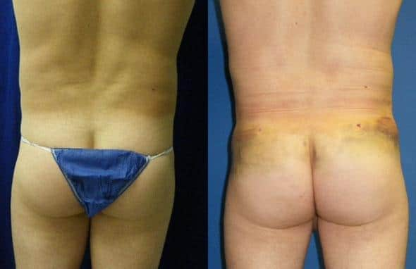 patient-1762-gluteal-augmentation-before-after