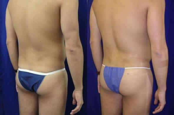 patient-1767-gluteal-augmentation-before-after