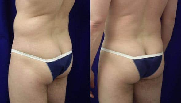 Gluteal augmentation to enlarge buttocks by Dr. Steinbrech