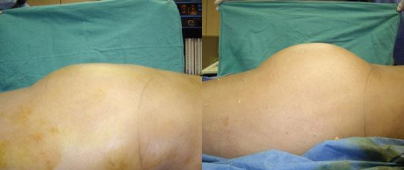 Gluteal augmentation to increase buttock fullness by Dr. Steinbrech