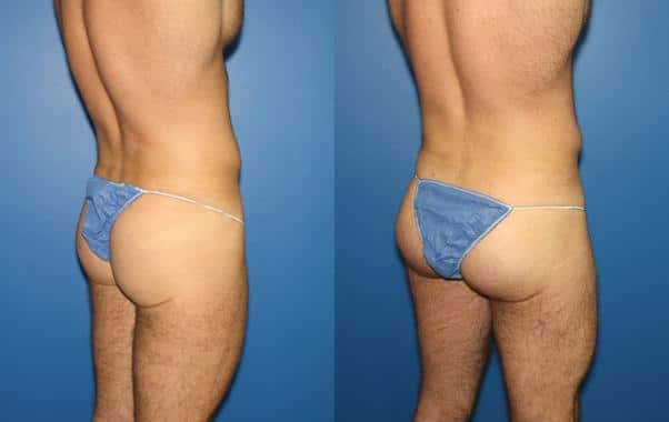 patient-1781-gluteal-augmentation-before-after