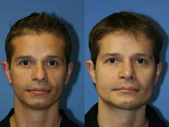 patient-1786-male-jaw-before-after