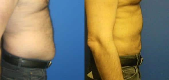 patient-1827-male-liposuction-before-after