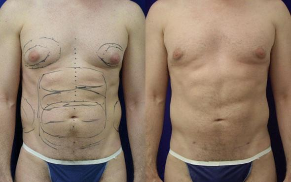 patient-1830-male-liposuction-before-after