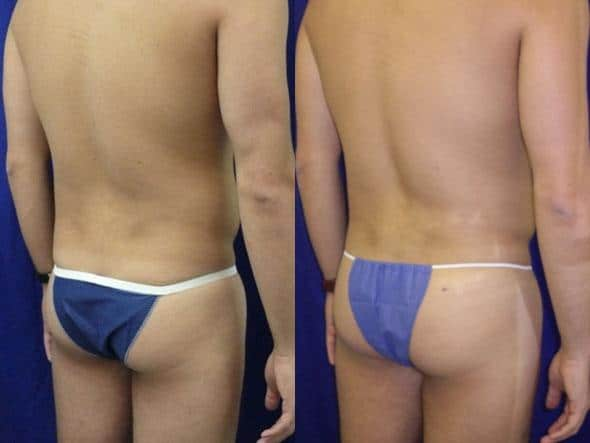 patient-1837-male-liposuction-before-after-1