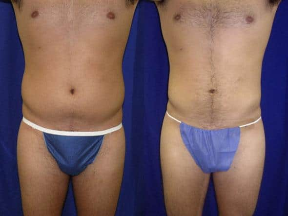 patient-1837-male-liposuction-before-after