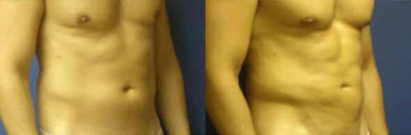 patient-1846-male-liposuction-be