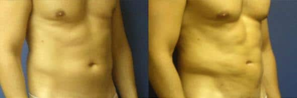 patient-1846-male-liposuction-before and after