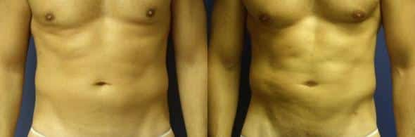 patient-1846-male-liposuction-before-after